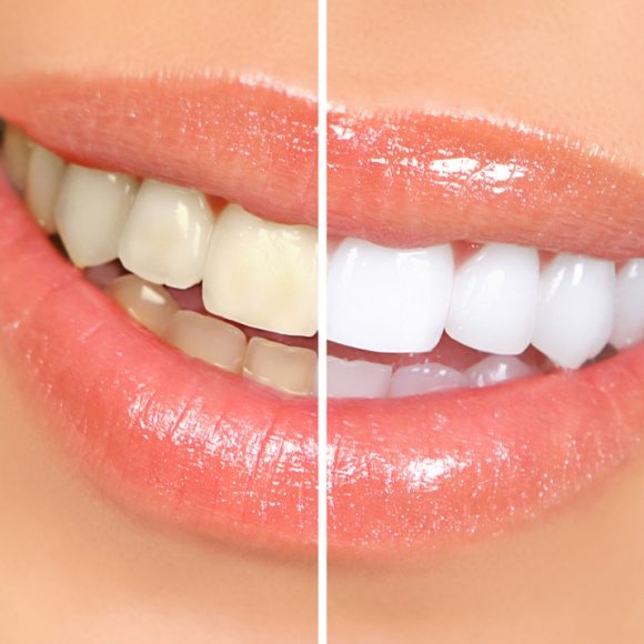 In-Office Whitening